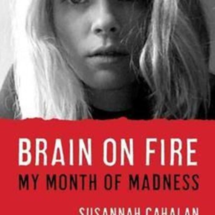 مغز در آتش